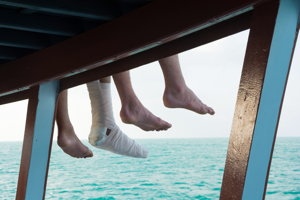 Image Credit: Shutterstock | http://www.shutterstock.com/pic-361895219/stock-photo-safety-trip-in-your-holiday-tourist-s-injury-leg-sitting-at-the-side-of-boat-sundeck-during-traveling-in-the-sea.html?src=WI2-1AcggJ8WrXeFuGlRzg-1-0